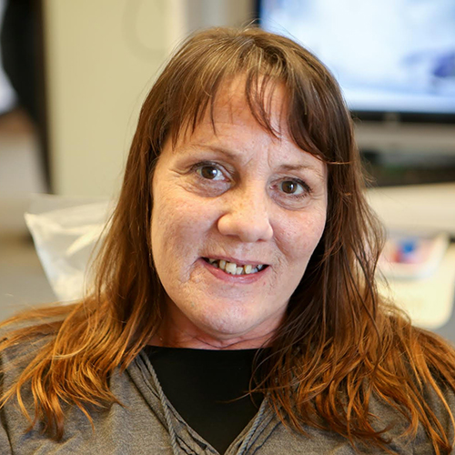 Bobbie Before Dental Work