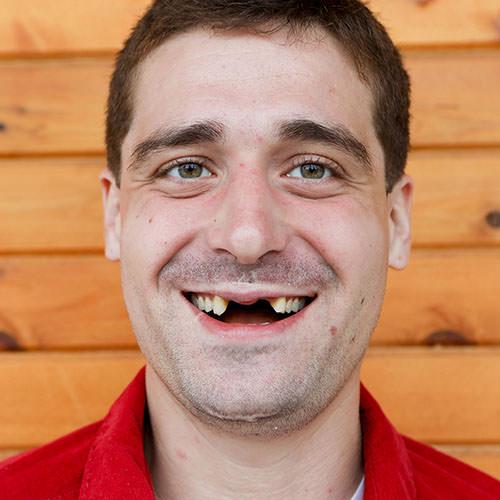Christian Before Dental Work