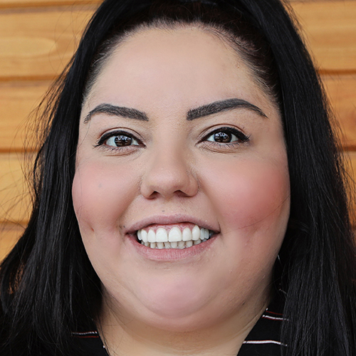 Raquel After Dental Work
