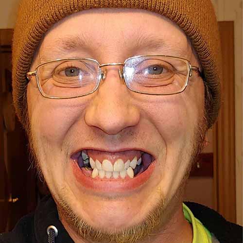 Stevie Before Dental Work