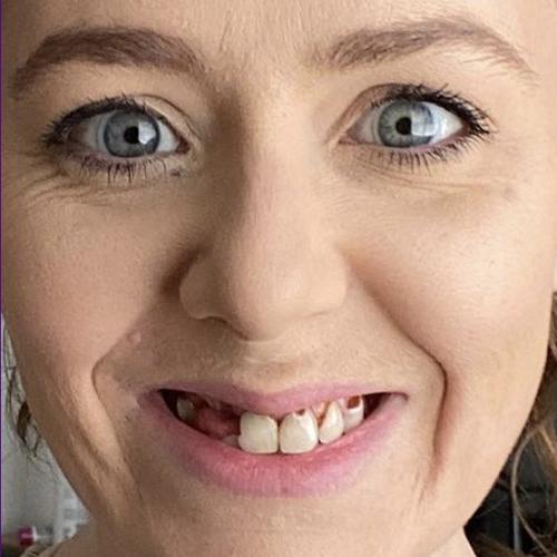 Allison Before Dental Work