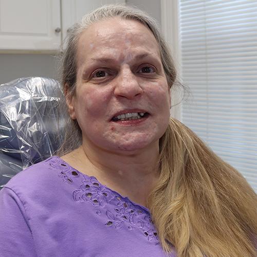 Lisa Before Dental Work