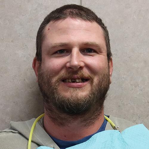 Mike Before Dental Work