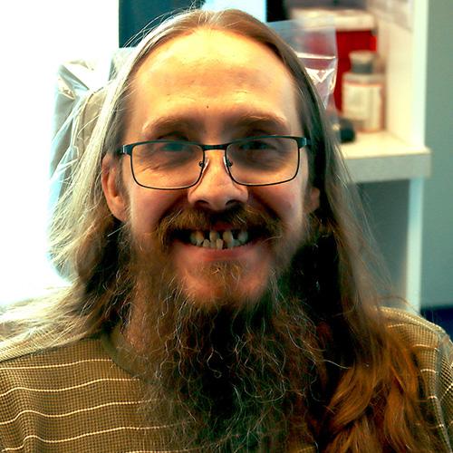 Timmy Before Dental Work
